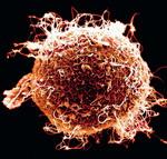 petesejt spermiumokkal