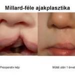 opera_nyulajak